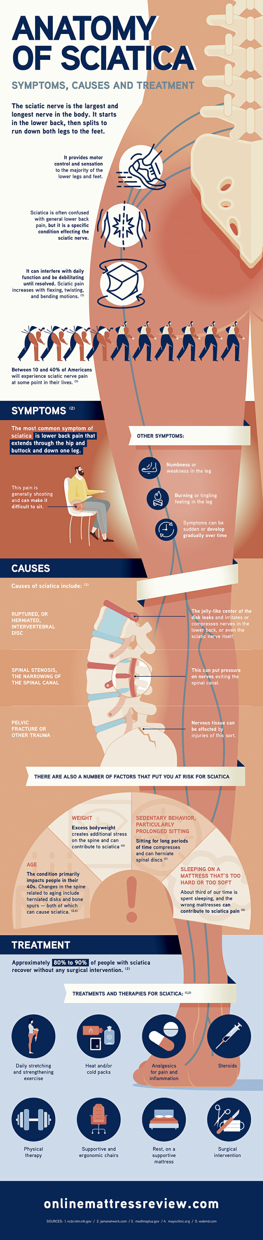 Anatomy of Sciatica
